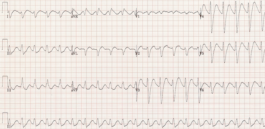 ECG sinus tachycardia, broad QRS complexs, postitive R wave - aVR, tricyclic antidepressant (TCA) overdose, sodium channel blocker toxicity