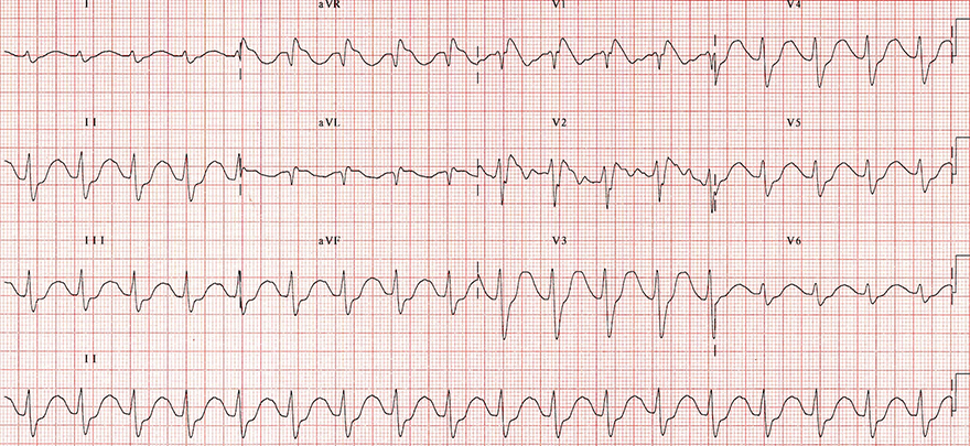 ECG sinus tachycardia, first degree av block, prolonged PQ interval, broad qrs, dominant R aVR,  prothiaden, tricyclic antidepressant (TCA) overdose, sodium channel blocker toxicity