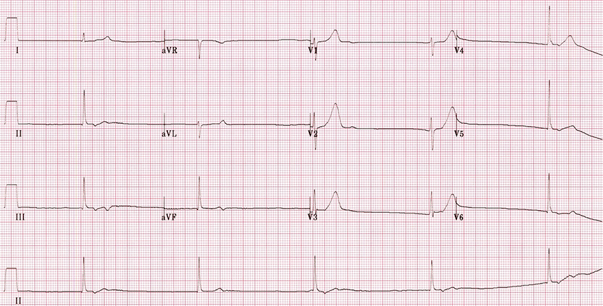 ECG beta blockers toxicity, overdose, poisoning junctional rhythm, narrow qrs, no visible p waves