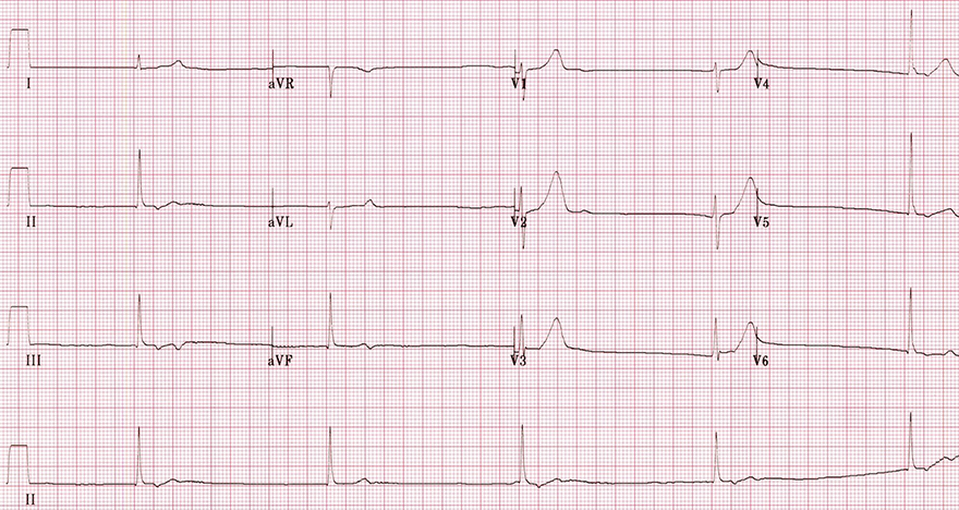 ECG verapamil calcium channel blocker toxicity, non-dihydropyridine, junctional rhythm