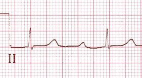 ECG cardioselective calcium channel blockers overdose, toxicity, first degree 1st av block