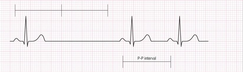 ECG sinus arrest (pause)