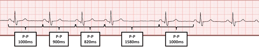 ECG second degree sa block, type I, wenckebach