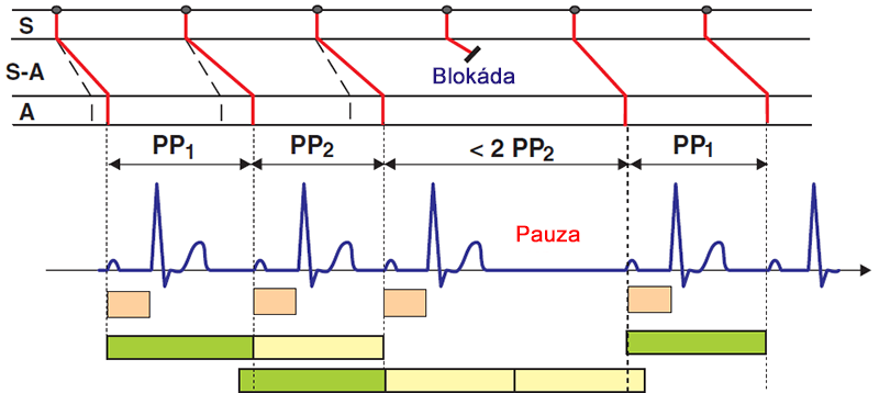 ECG and Laddergram 2nd degree sinoatrial (SA) block, Wenckebach