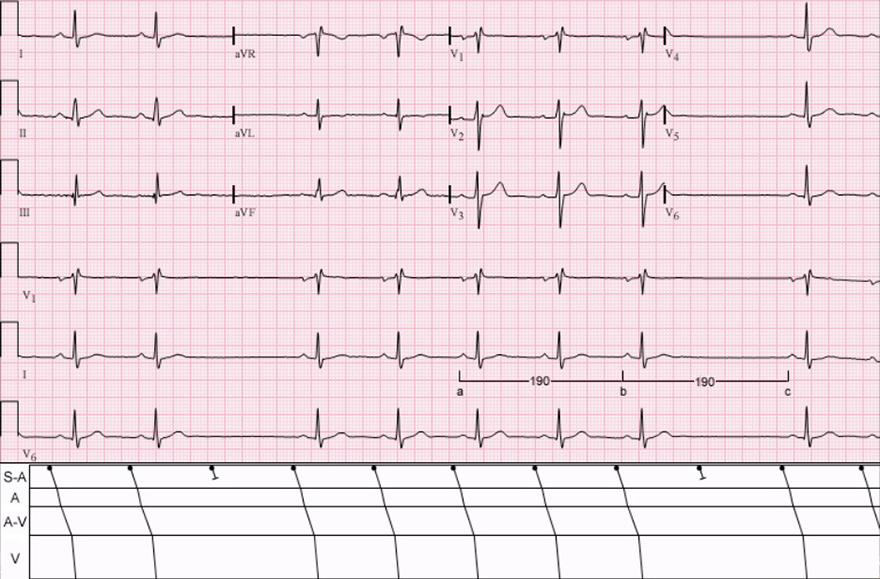 ECG and Laddergram, 2nd degree SA block, type 2, sa exit block