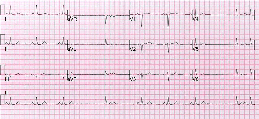 12 leads ECG, second degree SA block, type 2, premature junctional complex