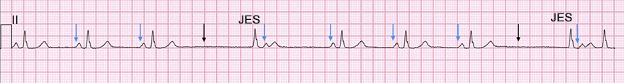 ECG 2nd degree SA block type 2, premature junctional complex, PP interval, RR interval