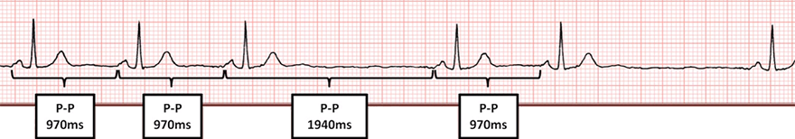 ECG 2nd SA block, type 2