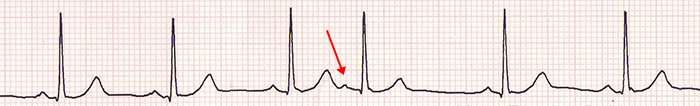 ECG isolated premature atrial complex