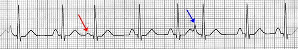 ECG multifocal premature atrial complex, multiple P waves morphologies