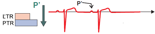 ECG prematura atrial complex conduction, and narrow QRS complex