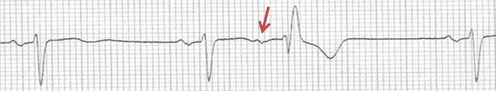 ECG premature atrial complex aberrant conduction, rbbb