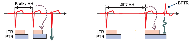 Atrial fibrillation ashman phenomenon, long refractory period, RR interval, aberrantly conducted beat RBBB morphology