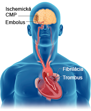 Trombo embolic ischemic stroke, atrial fibrillation, left atrial appendage with thrombus formation