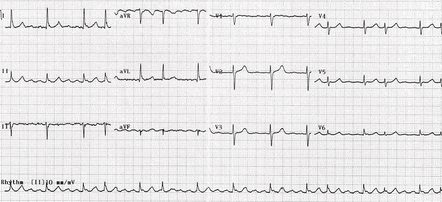 ECG isthmus dependent clockwise Reentry atrial flutter, variable block 2:1, 4:1