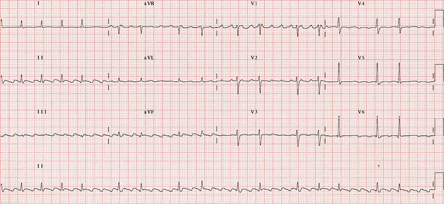 ECG, Typical Atrial Flutter (Variable Block 2:1, 4:1), Common, or Type I Atrial Flutter, anticlockwise reentry