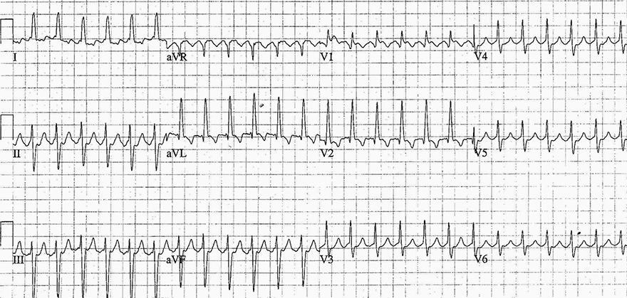 ECG supraventricular tachycardia, Clockwise reentry atrial flutter, with flutter waves