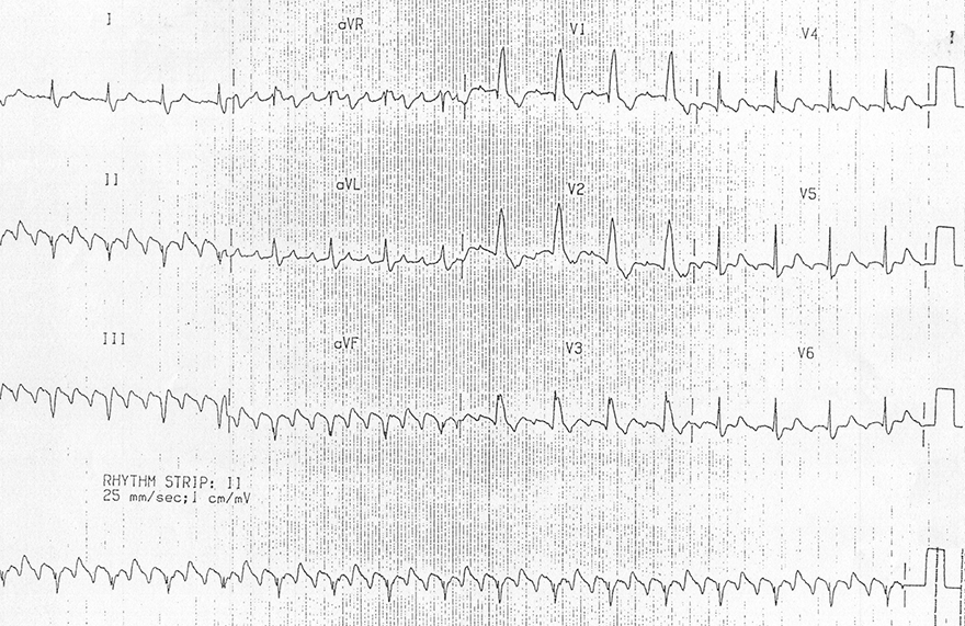 ECG Typical Atrial Flutter (AV block 3:1), Common, Type I (Anticlockwise Reentry), negative flutter waves in the inferior leads (II, III), atrial rate 300bpm, ventricular rate 100bpm