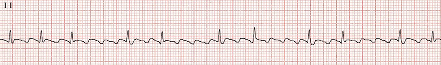 ECG typical atrial flutter, variable block 2:1, 4:1