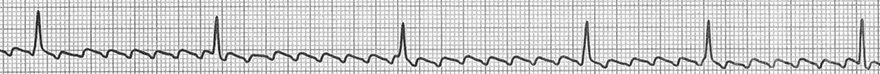 ECG typical atrial flutter, variable block, 7:1, 8:1, 5:1