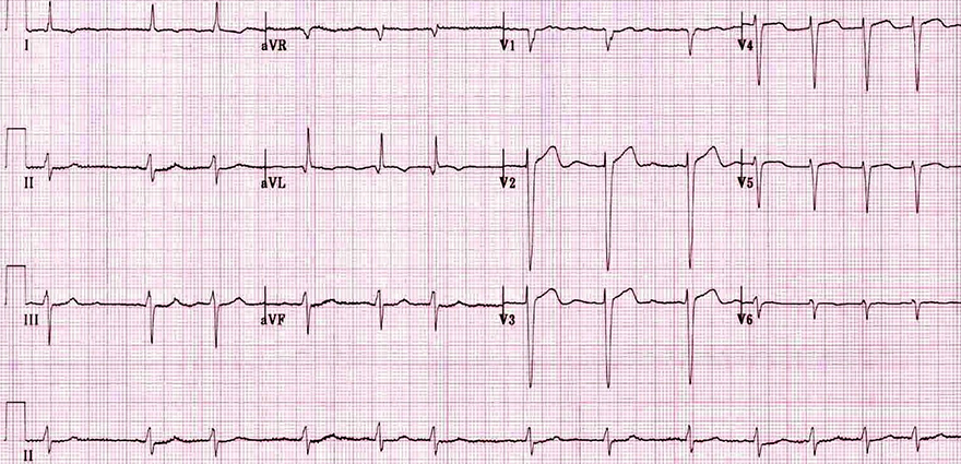 ECG atrial fibrillation, irregular rhythm, no P waves
