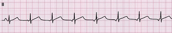 ECG Multifocal atrial arrhythmia