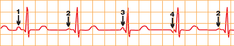 ECG wandering pacemaker, morphological changes in the P-waves