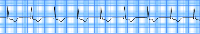 ECG accelerated av junctional rhythm, junctional rhythm at 60-100 bpm