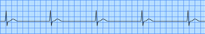 ECG junctional av bradycardia, junctional rhythm at a rate of less 40bpm