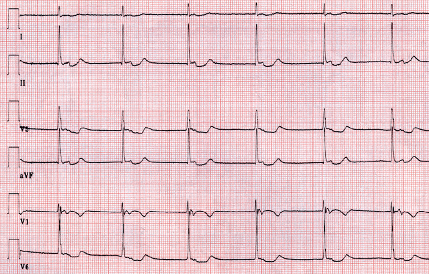 ECG isorhythmic av dissociation, sinus rhythm, junctional av rhythm