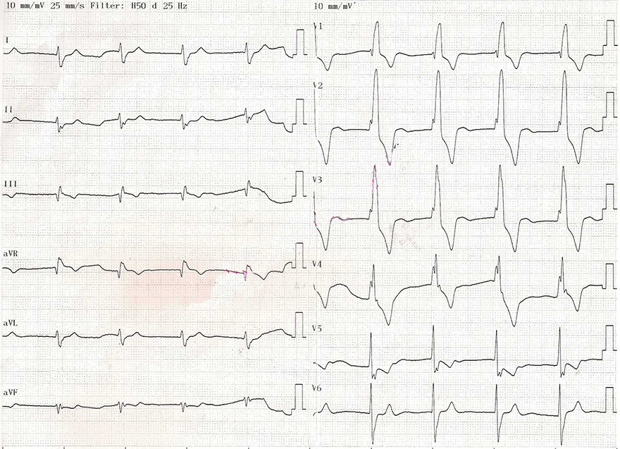 ECG middle av junctional rhythm, right bundle branch block (RBBB), 60 bpm