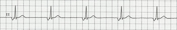 ECG AV junctional rhythm