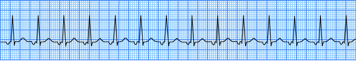 ECG junctional av tachycardia, junctional rhythm more than 100 bpm.