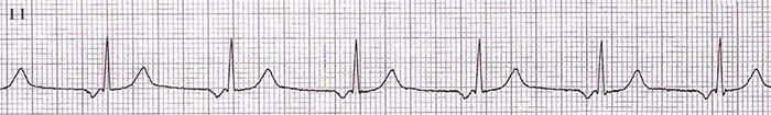 ECG upper av junctional rhythm, retrograde p waves, before qrs