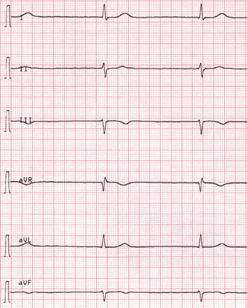 ECG muddle junctional av bradycardia, 33 bpm