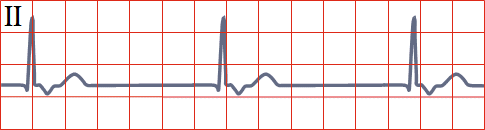 ECG junctional rhythm vs. sinus rhythm