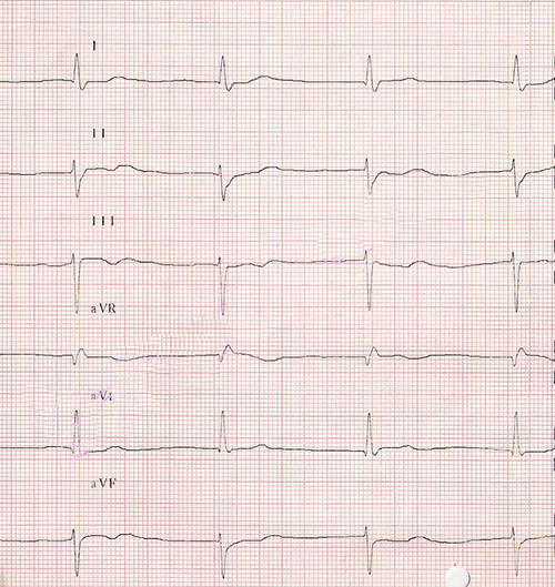 ECG middle junctional av rhythm, rate 48bpm