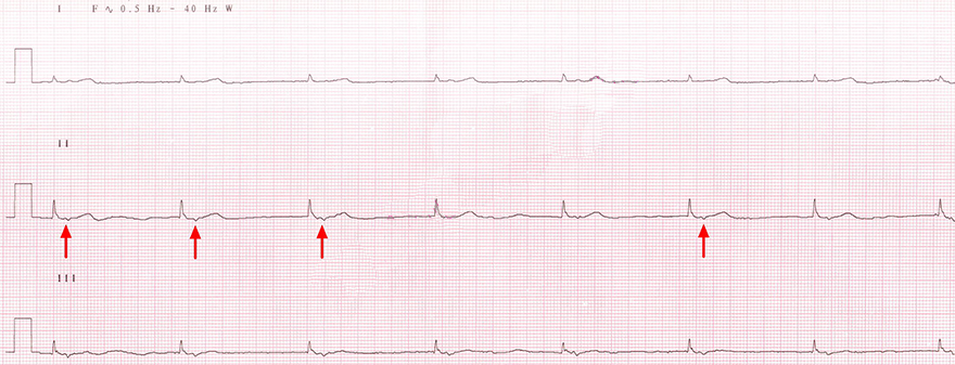 ECG lower av junctional rhythm 60 bpm