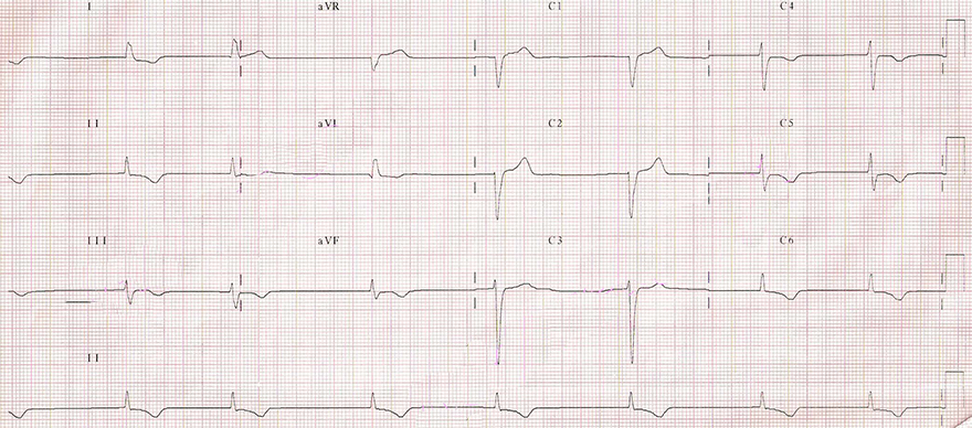 ECG middle av junctional escape rhythm, 45 bpm
