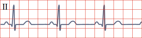 ECG sinus rhythm vs. junctional rhythm
