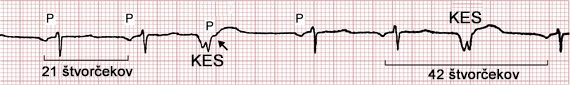 ECG premature ventricular complex, and fully compensatory pause, PP interval
