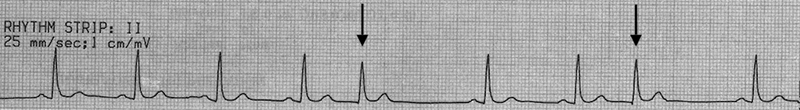 ECG junctional extrasystoles, no p waves, narrow qrs, noncompensatory pause