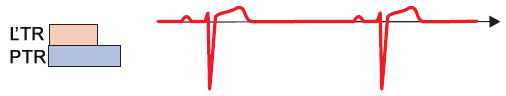 ecg sinus rhythm without aberrant conduction, righ left bundle refractory period