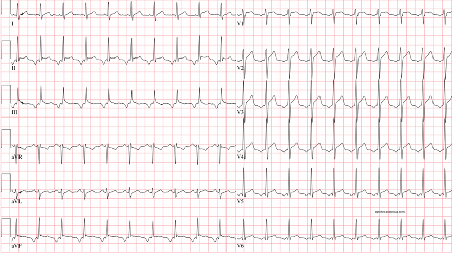 Permanent Junctional Reciprocating Tachycardia (PJRT), Pseudo (Slow-Slow) AVNRT, Coumels tachycardia, Incessant supraventricular tachycardia