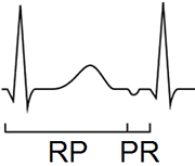 RP interval, Pseudo (Slow-Slow) AVNRT, Coumels tachycardia