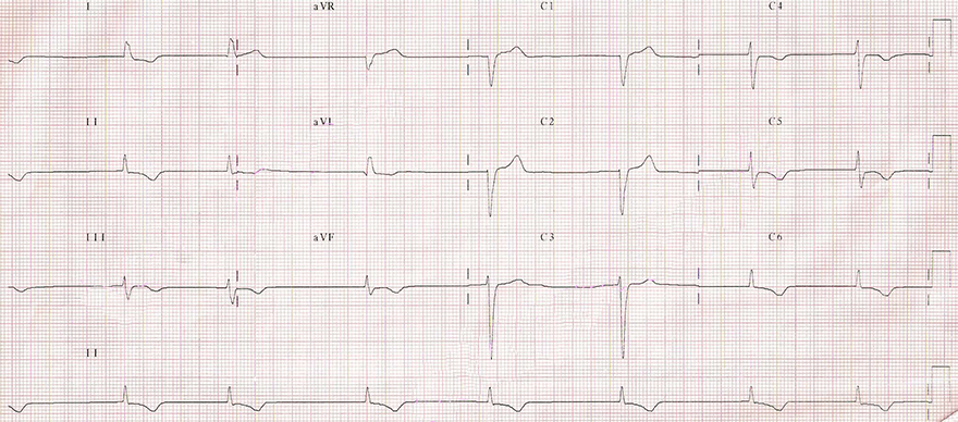 ECG junctional AV middle rhythm, 45 bpm