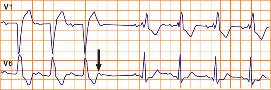 ECG Alternating bundle branch block