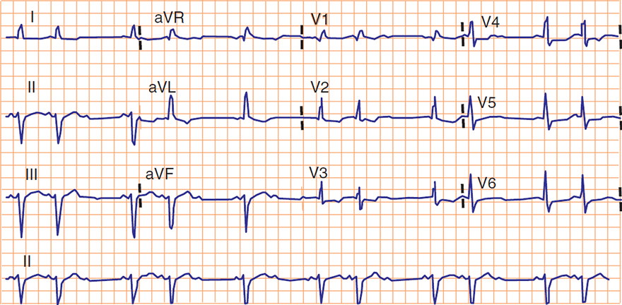 ECG bifascicular block, 2nd degree av block - mobitz 2