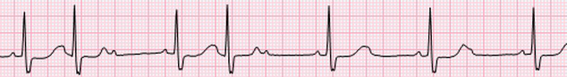 ECG 2nd AV block, Mobitz 2, narrow QRS