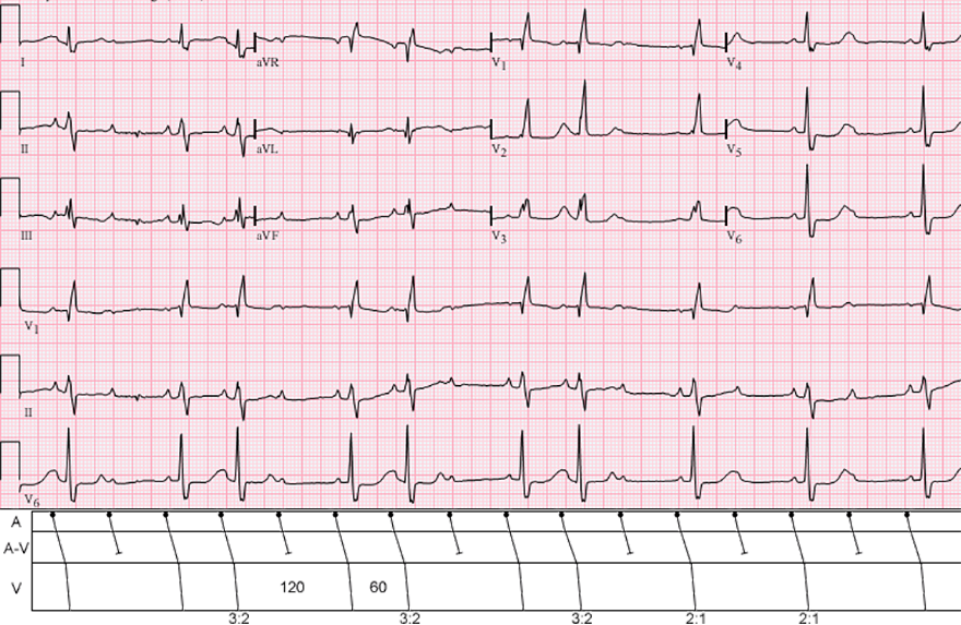 ECG, laddergram: 2nd degree AV block, Mobitz 2